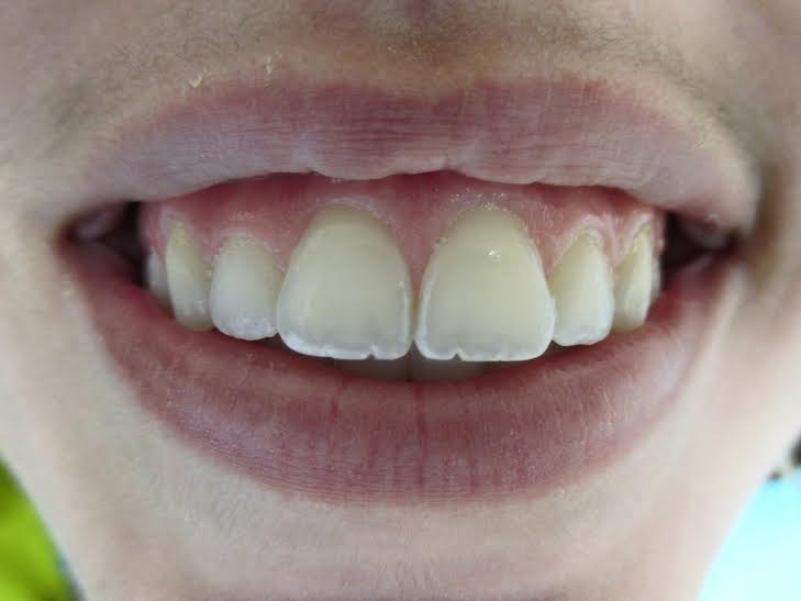 Teeth Whitening Glen Mills Pa Alrez Family Dentistry