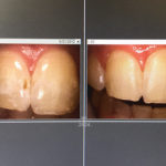 Before and After Enamel Microabrasion