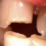 Severe destruction from tooth grinding