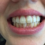 Teeth with White Spots