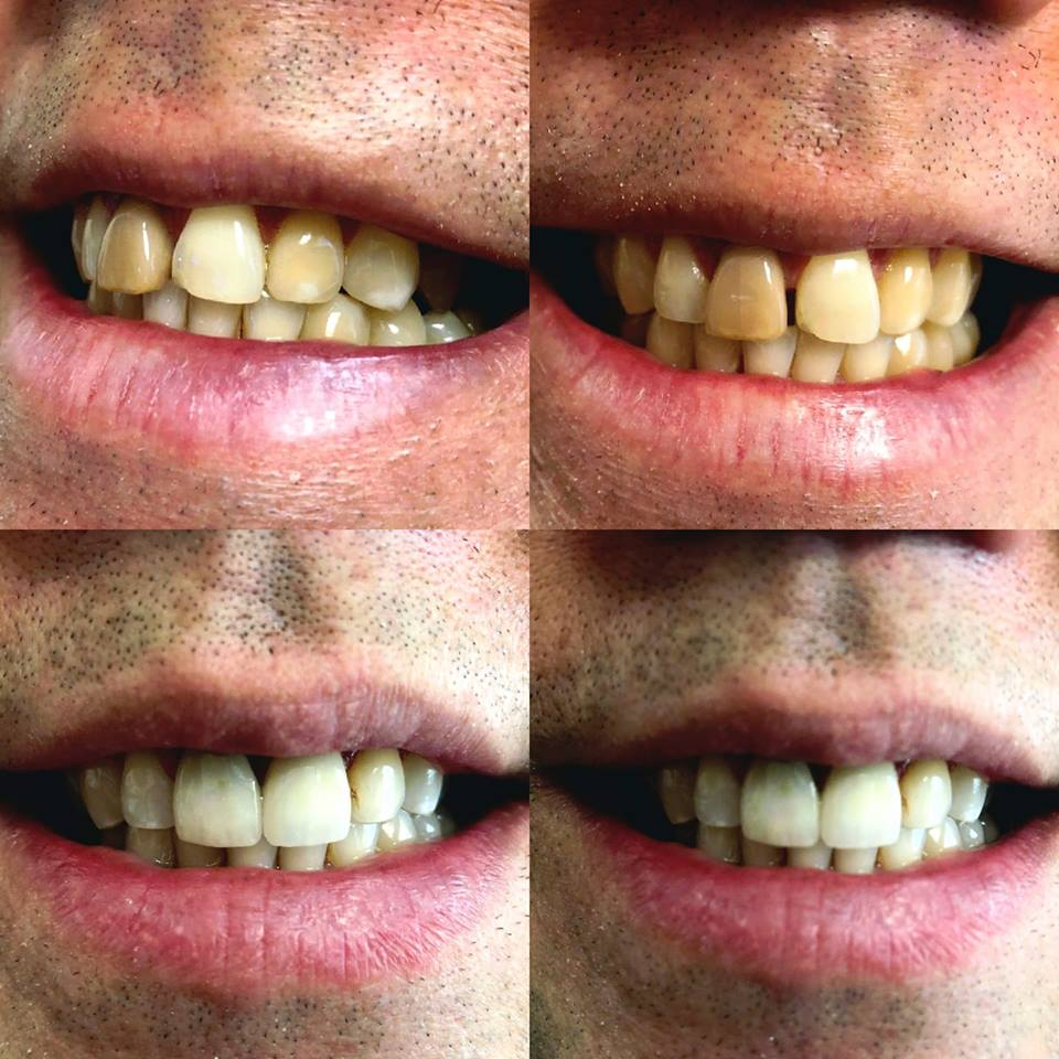 crowns and whitening