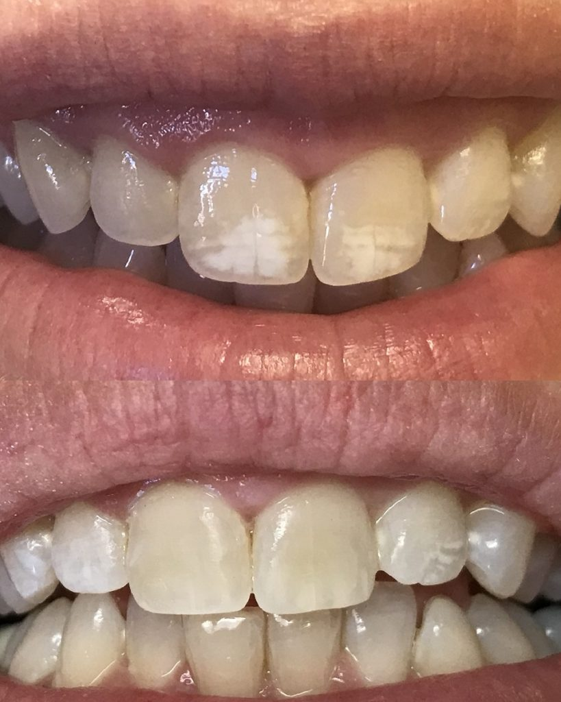 Before and After Removing White Spots from Teeth