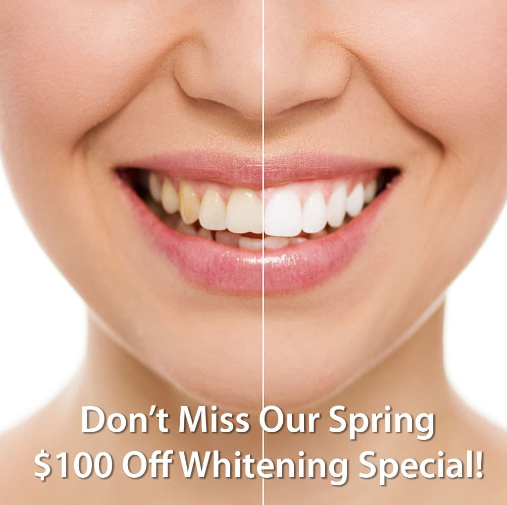 $100 Off Whitening Special